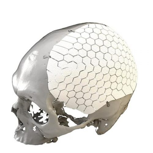 swedish-company-ossdsign-receives-fda-clearance-3d-printed-cranial-implants-1
